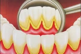 Receitas Completas Para Eliminar Este Problema do Tártaro nos Dentes