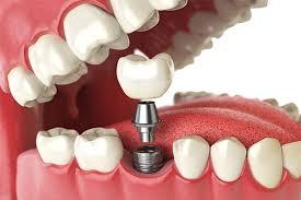 Onde Contar Com Esse Recurso dos Implantes Dentários de Baixo Custo